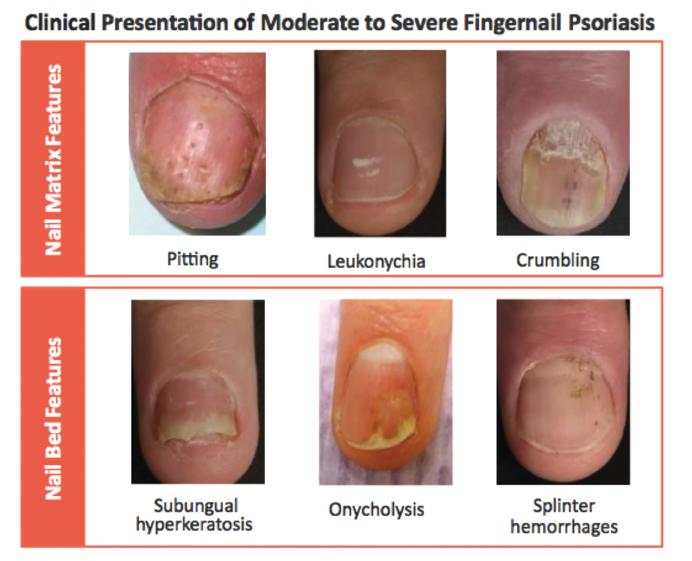 piros folt jelent meg a bal kézen a pikkelysömör súlyos súlyosbodása hol kell elkezdeni a kezelést