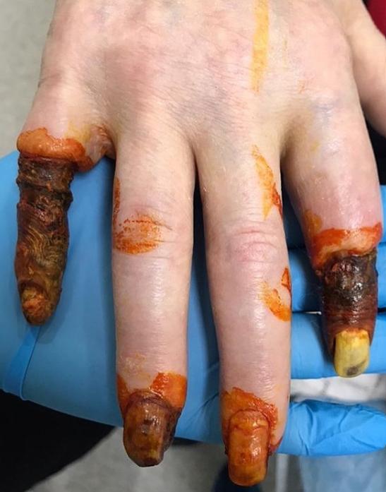 Gangrene Image