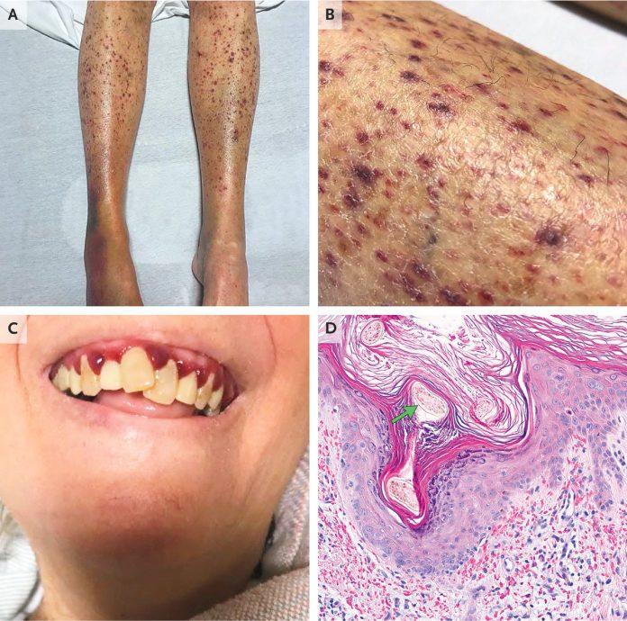 Scurvy rash