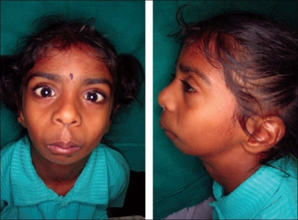 Roberts Syndrome: Facial features with retrognathia