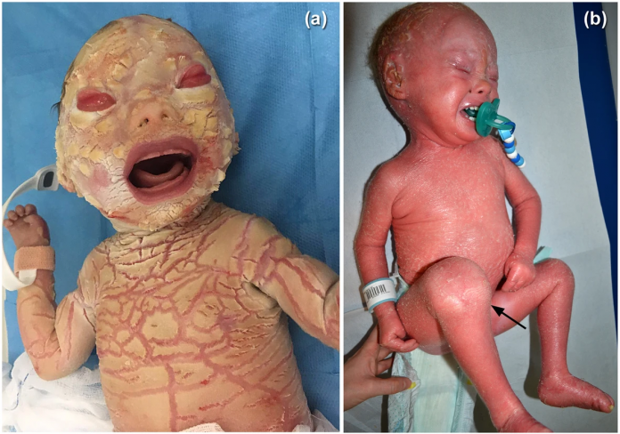 Harlequin Ichthyosis Example