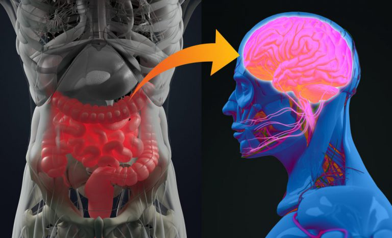 Alzheimer's Disease Linked to Gut Bacteria