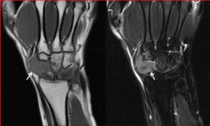 Giant cell tumour of tendon sheath