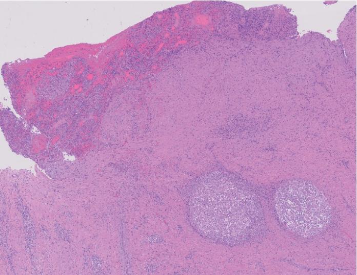 Necrotising granulomatosis sarcoidosis