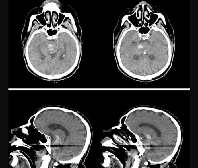 Erectile dysfuntion medication led to ICH