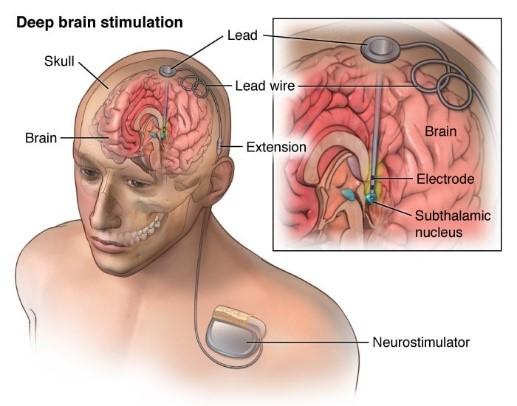 Deep Brain Stimulation Relieves Symptoms of Depression