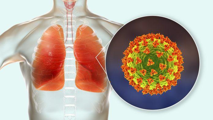 COVID-19 Lung Transplant