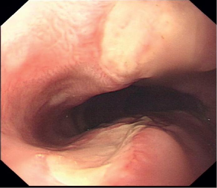 N-Acetylcysteine Induced Esophagitis