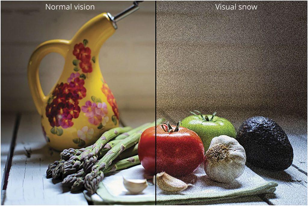 Visual Snow Syndrome