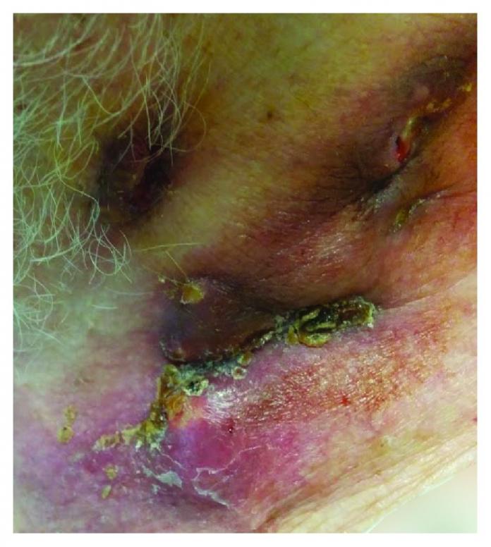 Left lateral cervical mass