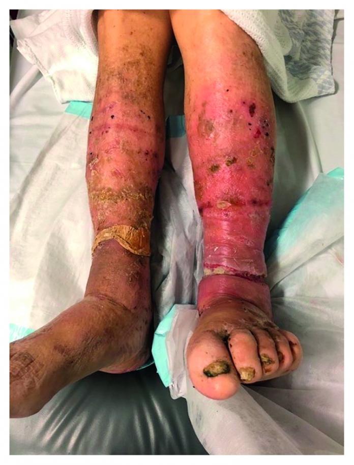 Limb Ulceration