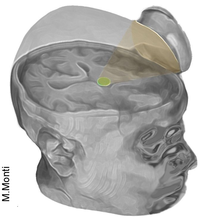 Ultrasound aimed at thalamus helps coma patients regain consciousness.