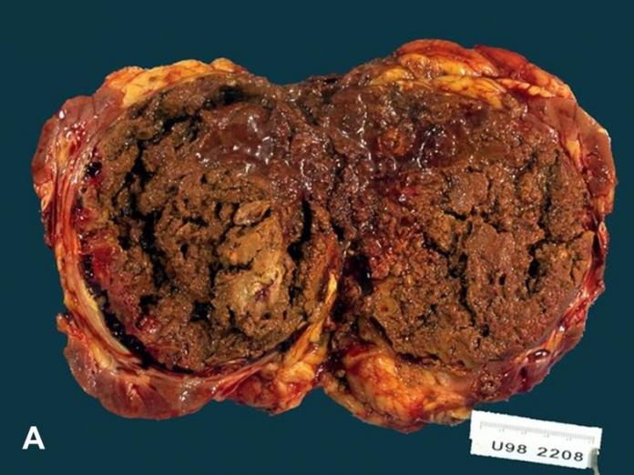 Renal Cell Carcinoma Metastases