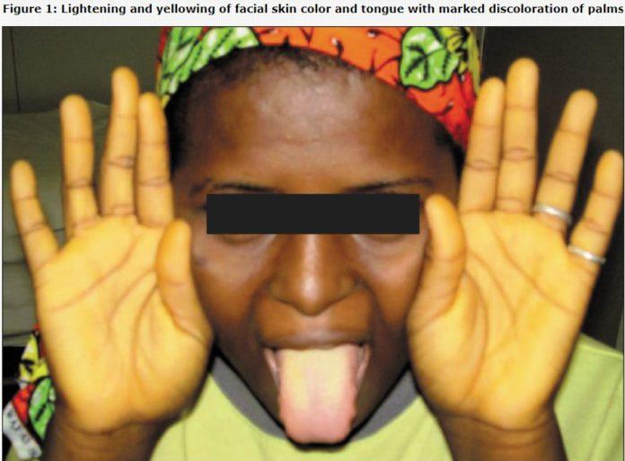 Yellowish discolouration of skin