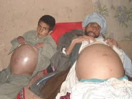 Charmak disease outbreak of 2007 similar to the mysterious disease in Helmand Children