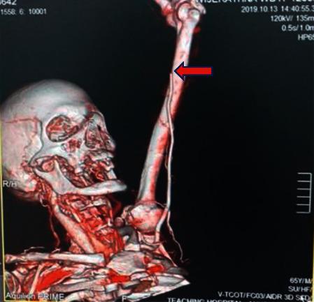 Brachial artery thrombosis