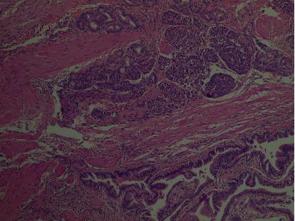 Heterotopic Pancreas in the Gallbladder