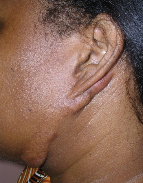 Keloid extending from the ear lobule to the anterolateral aspect of the neck. Similar presentation bilaterally.