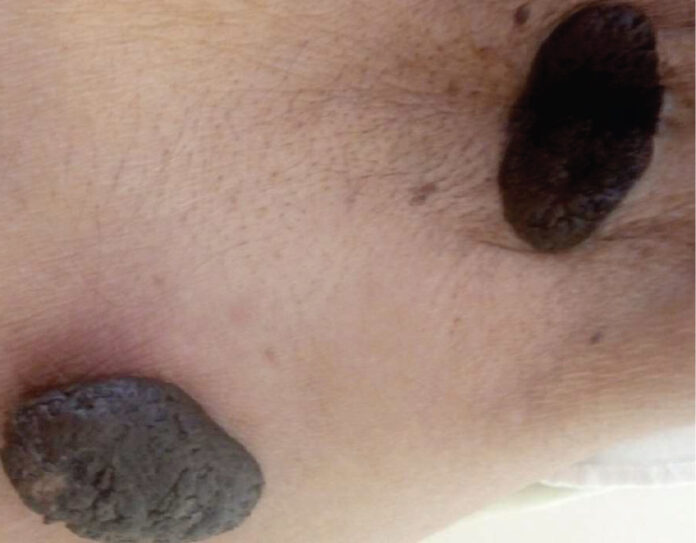 Seborrhoeic keratoses