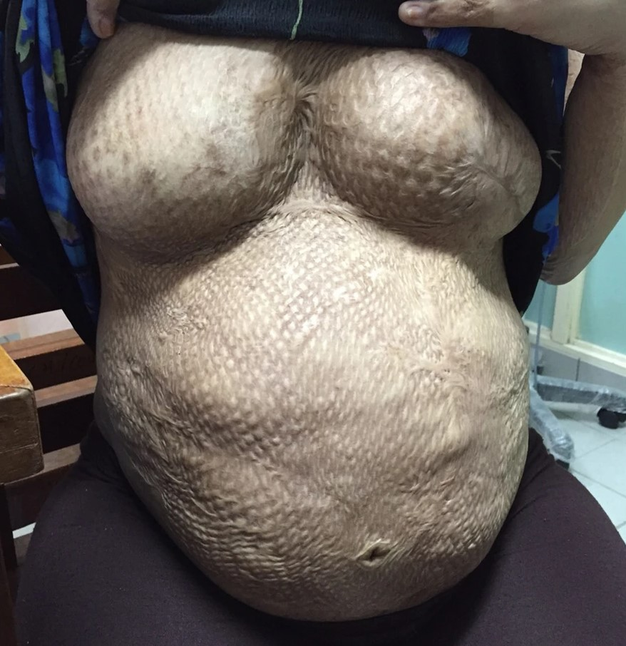 unable to breastfeed due to burn injuries