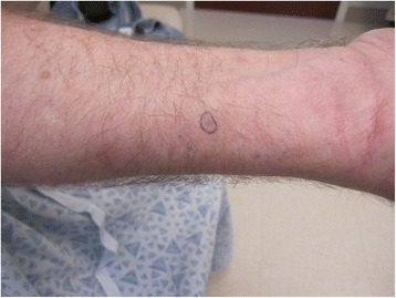 dermally implanted rubber