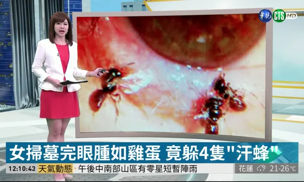 Taiwanese television showing the sweat bees living in the persons eye. Photograph: CTS Taiwan / Youtube