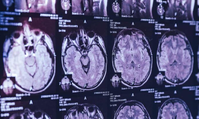 Mysterious brain disease reported in Canada