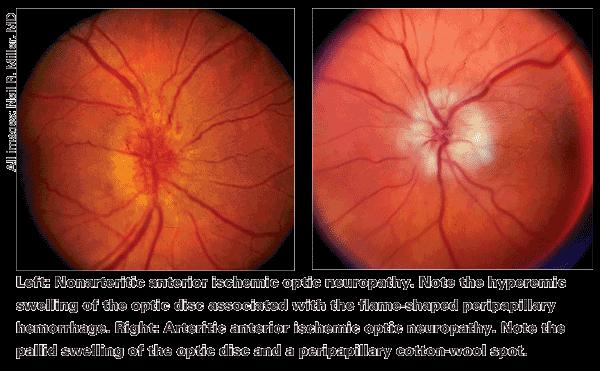 Nonarteritic, Anterior Ischemic Optic Neuropathy