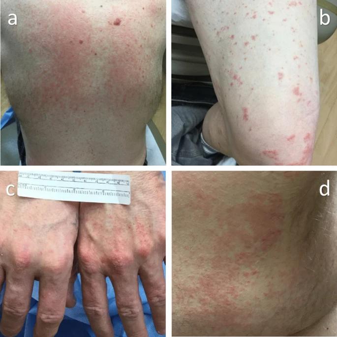Refractory dermatitis