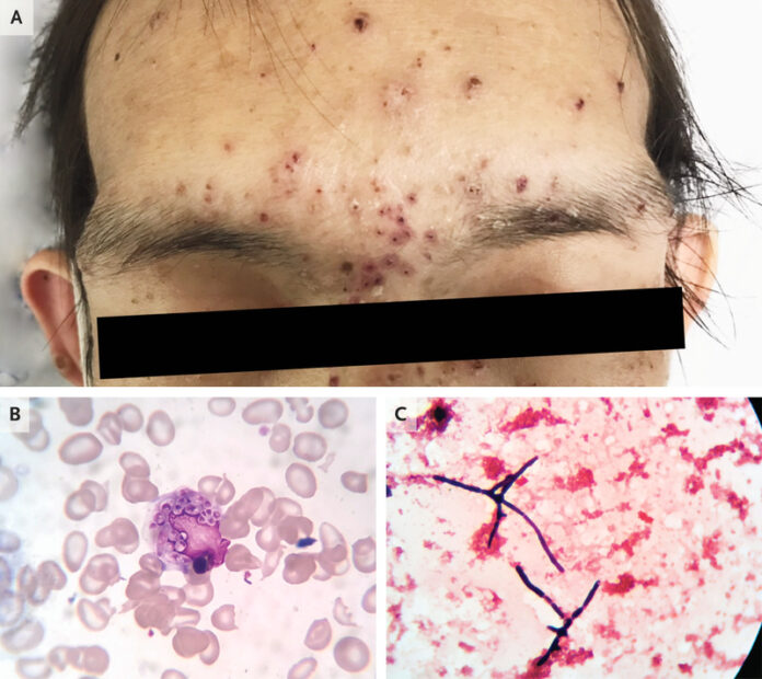 Talaromycosis in HIV positive patient