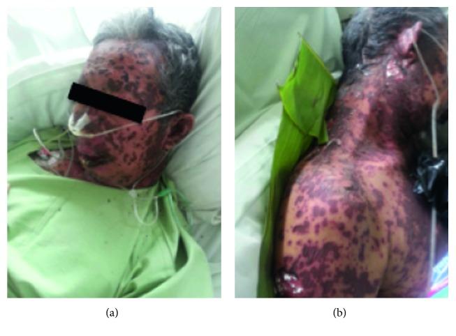 Methampyrone-Induced Toxic Epidermal Necrolysis