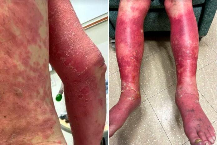 severe rash post COVID-19 vaccine