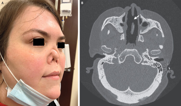 sunken nose
