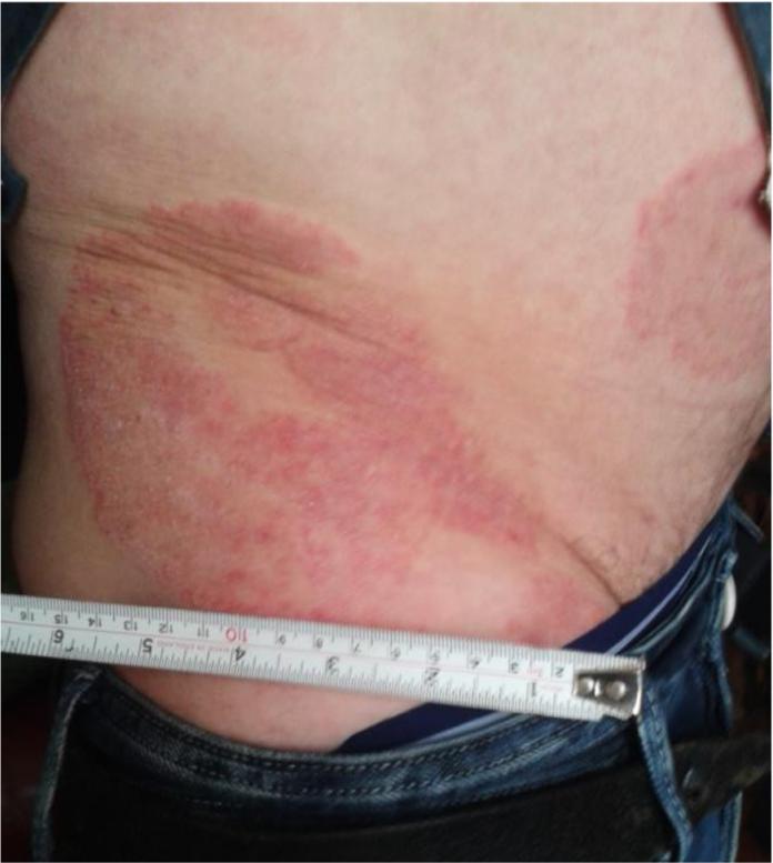 Psoriasis lesion