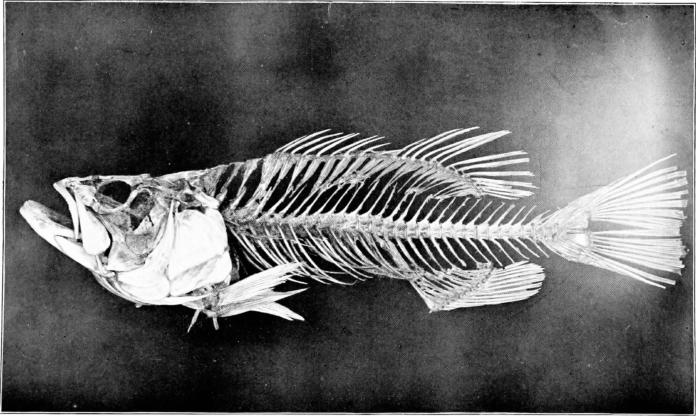 Subcutaenous emphysema caused by fish bone ingestion