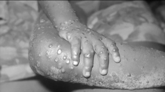 lesions of monkeypox