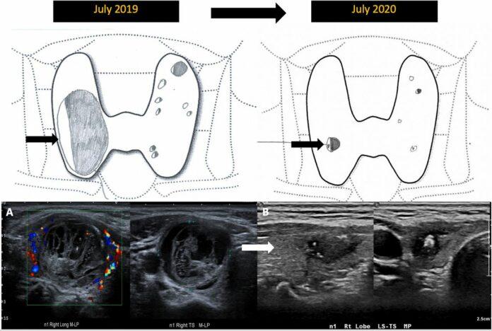 Mummification of benign thyroid nodule
