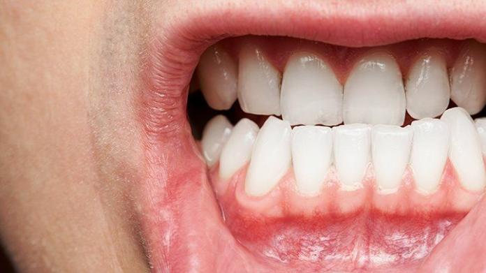 Gum disease and hypertension