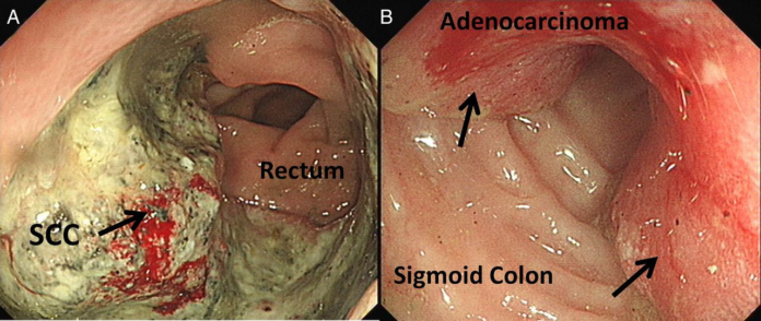 Anal squamous cell carcinoma