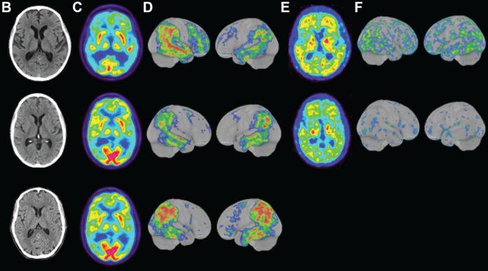 Alzheimer's Disease CT Scan
