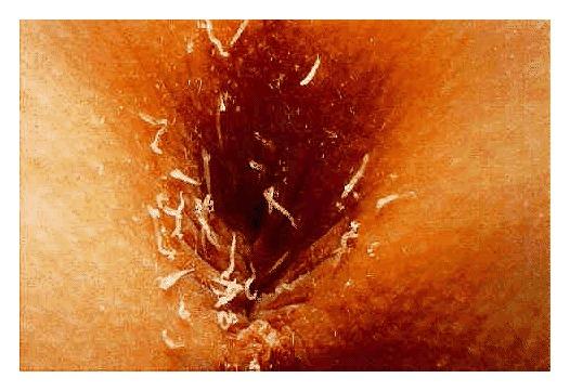Female pinworms