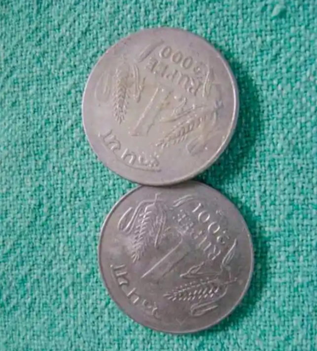 Coins removed from the esophagus