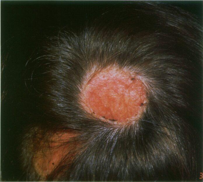 Herpes simplex virus infection