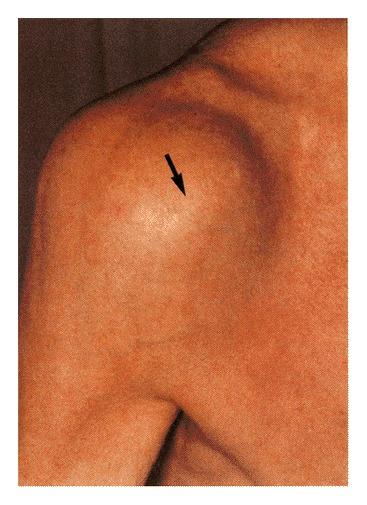Amyloid arthropathy